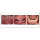 下牙多颗种植后,制作半口假牙