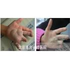 小林 6岁 手部海绵状血管瘤