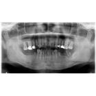 双侧后牙种植修复1例