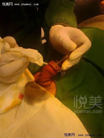 最新专利技术套环激光包皮环切术