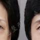 微光逆转术眼部提升