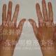 双手严重烧伤后瘢痕松解植皮治疗效果图