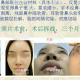 广州艺美李闯 鼻修复一年反馈