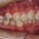 牙齿矫正案例!!!