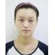 昨天在济南韩氏整形美容医院做了双眼皮手术,因为是国庆假期,来做美容手术的人挺多,还好我是提前预约的。...