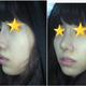 心路历程我的特点非常的突出,鼻子有些驼峰鼻子。而且下巴还有些后缩。我以前从来没有想过去韩国做整形,对...
