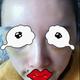 心路历程本人是于2012年4月6日做的自体脂肪丰太阳穴和苹果肌手术。其实我的脸型偏瓜子,额头挺饱满,下巴比...