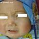 心路历程    孩子出生左侧脸上就有一大块的血管瘤,我趁着孩子还没有记事,想先给他治好。所以去做了光子治...