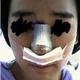 心路历程    大家好,我做鹰钩鼻整形手术有一个月了,现在完全逃离了鹰钩鼻的烦恼!   在我做手术前,我的鼻...