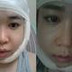 心路历程我知道有很多人因为牙齿咬合不正,面部不对称,撅下巴等面部问题很是烦恼和伤心,想要去做双颚手术...