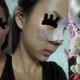 心路历程这是我做鼻部整形手术前的模样大家从照片上就能看出来,我的鼻子很塌,又有点歪,像鹰钩鼻,同时我...