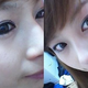 近同时做了双眼皮和驼峰鼻整形手术。我的驼峰鼻现象太严重,所以先抹掉凸的部位,然后放入假体。眼部整形用...