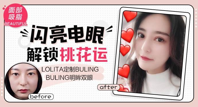 【眼整形】 Lolita定制bulingbuling明眸双眼